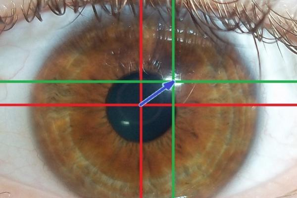 Image of eye tracking software in action